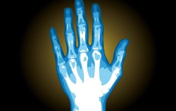 X-Ray Hand Illustration - Free vector #174197