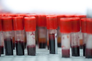 Tubes of blood in rack closeup - Free image #347257