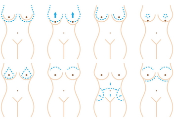 Breast Surgery - vector gratuit #378877